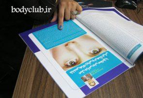 برای انتخاب بهترین جراح بینی چه باید کرد؟